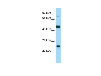 PADI6 Antibody - N-terminal region