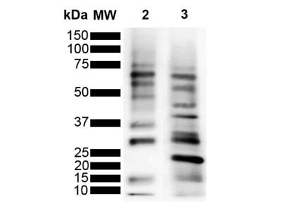 Mouse Anti-Ubiquitin Antibody