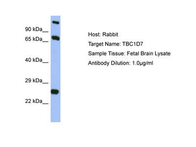 TBC1D7 Antibody - middle region