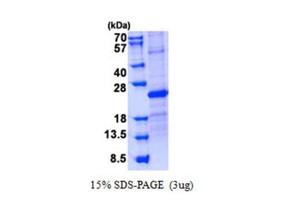 Purified recombinant Human SOSTDC1 protein (His tag)