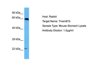 TMEM87B Antibody - middle region