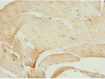 PIP5K1B Antibody