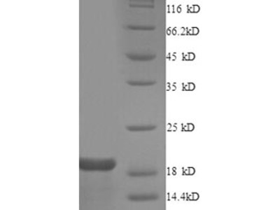 Recombinant Human Gap junction alpha-1 protein (GJA1), partial