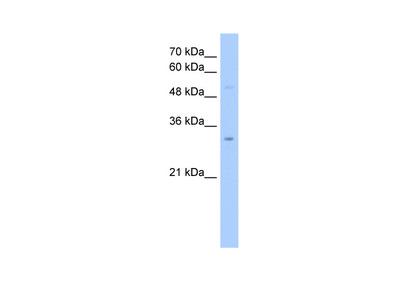 NSUN5C antibody - middle region