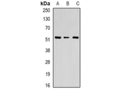 Anti-Chitotriosidase Antibody