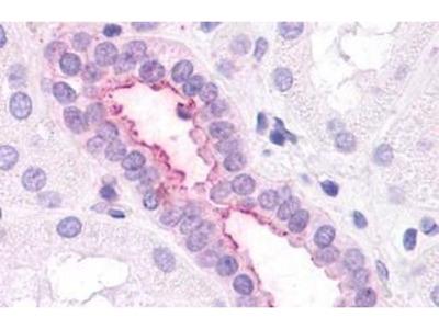 Anti-CXCR2 antibody
