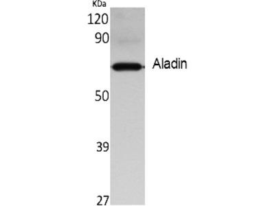 Aladin Polyclonal Antibody