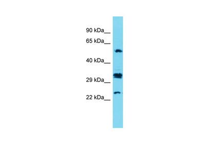 CT47A7 Antibody - C-terminal region