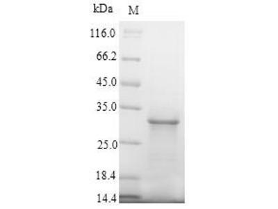 Recombinant Human Sodium/glucose cotransporter 2 (SLC5A2), partial