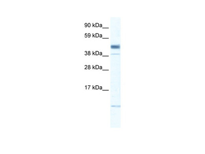 ZMAT1 antibody - middle region