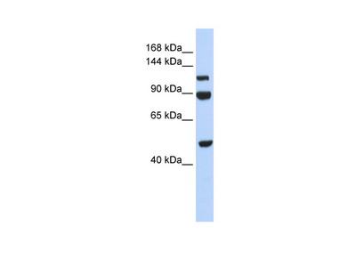 NARG1L antibody - middle region