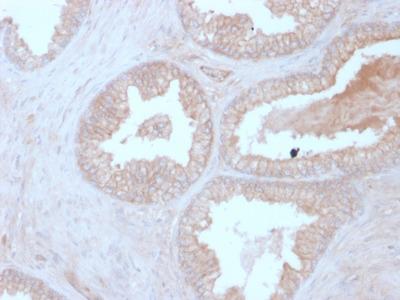 Calcineurin B/PPP3R1 Antibody