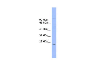 ZNF655 antibody - N-terminal region