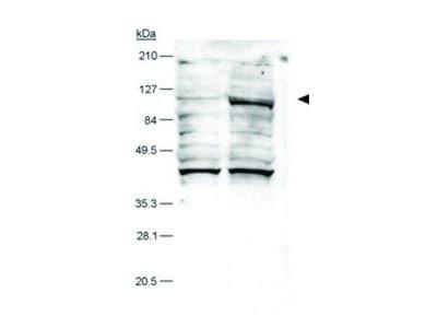 Anti-HIF2 alpha antibody [ep190b]