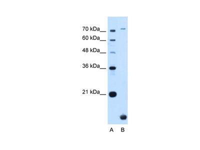 TMEM91 antibody - N-terminal region