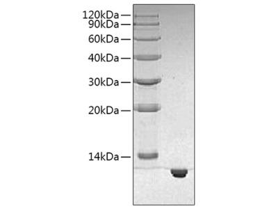 Recombinant Human S100 Calcium Binding Protein B/S100B Protein