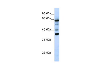 ZNF630 antibody - N-terminal region