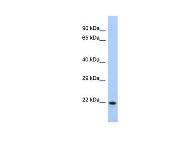 CCDC27 Antibody - N-terminal region
