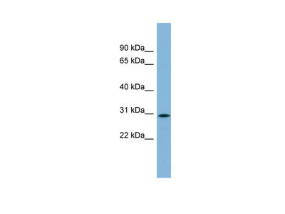 NKAPD1 Antibody - middle region