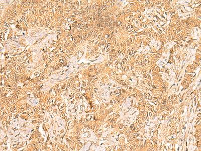 TRMT112 Polyclonal Antibody