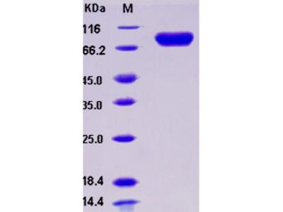 Recombinant Human IL-1R8 / IL1RAPL1 Protein (Fc tag)