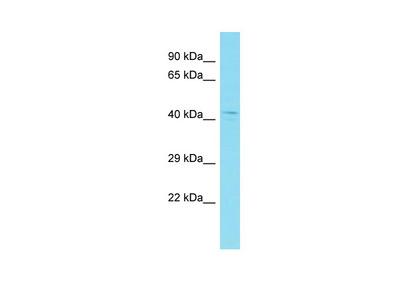 CCDC74B Antibody - N-terminal region