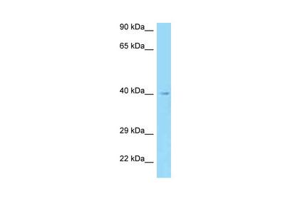 AADACL3 antibody - N-terminal region