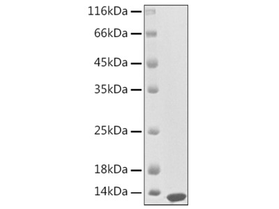 Recombinant Human S100A12 Protein