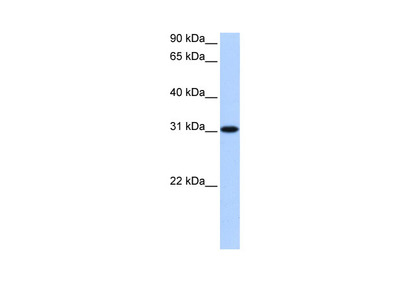 TNRC18 antibody - N-terminal region