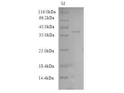 Recombinant Human Exportin-2 (CSE1L), partial