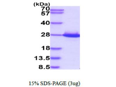SDF2, 19-211aa, Human, His-tag, Baculovirus
