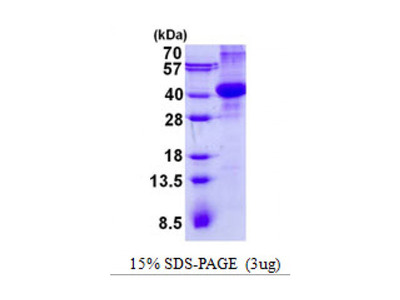 Purified recombinant Human AMN protein (His tag)