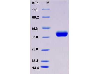 Recombinant Mouse CLEC10A / MGL1 / CD301 Protein (His tag)