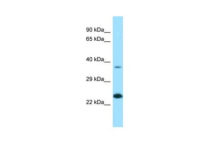 EPDR1 Antibody - N-terminal region
