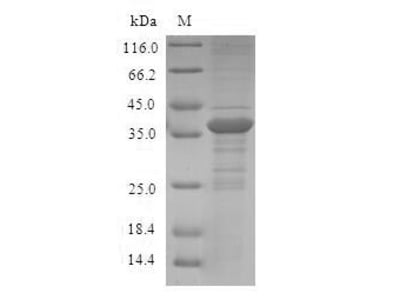 Recombinant Human Protein S100-A12 (S100A12)
