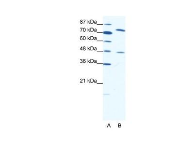 ZNF225 antibody - N-terminal region