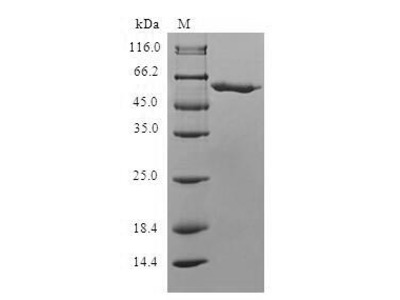 Recombinant Human Mitochondrial carnitine/acylcarnitine carrier protein (SLC25A20)