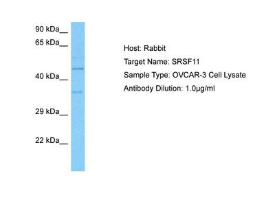 SRSF11 Antibody - middle region