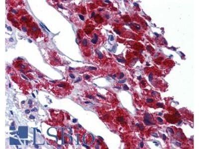 LRRN4 / C20orf75 Antibody