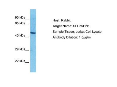 SLC35E2B Antibody - N-terminal region