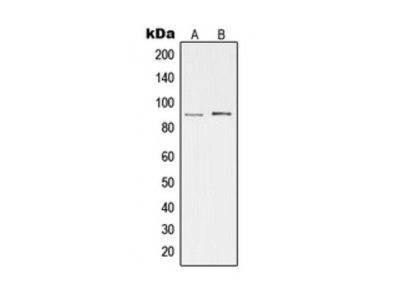 cGK2 Antibody