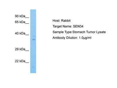TSEN34 Antibody - middle region