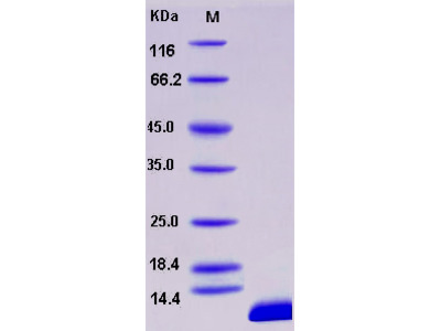 Recombinant Human S100B Protein (His tag)