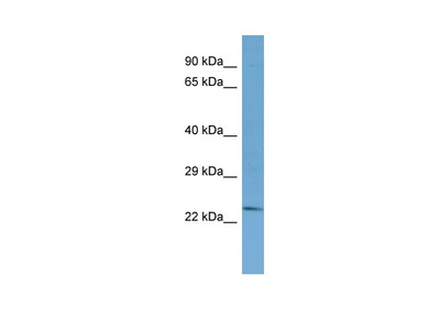 TYW3 Antibody - N-terminal region
