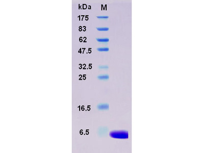 Recombinant Human S100A1 Protein