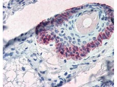 Mouse Monoclonal Cytokeratin 15 Antibody