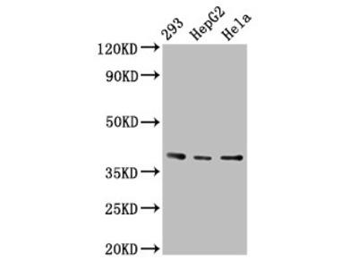 PTGR2 Antibody