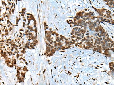 CCDC12 Antibody