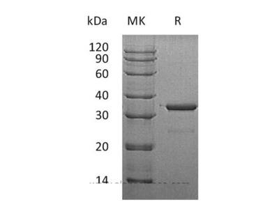 Recombinant Human Cytosolic Sulfotransferase Family 1A Member 3 Protein
