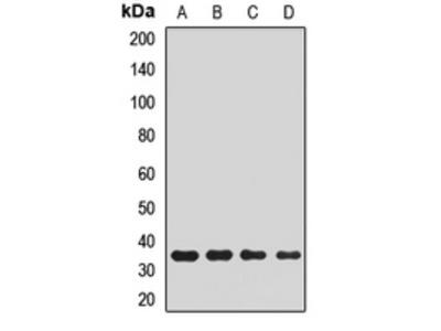 Anti-PLCXD2 Antibody